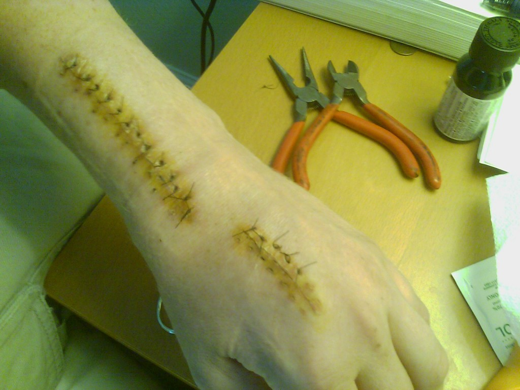My hand after last surgery